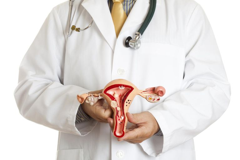 Doctor holding an anatomically correct model of uterus and ovaries with some most common pathologies: endometriosis, adhesions, fibroids, salpingitis, cysts, pedunculated fibroid tumor, polyps and various carcinoma. White background.'