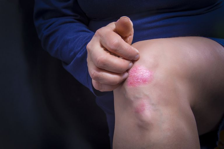 Psoriasis plaque on woman's knee
