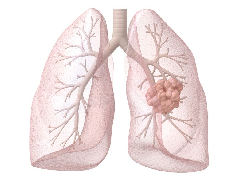 diagram of the lungs with a lung cancer in one lobe