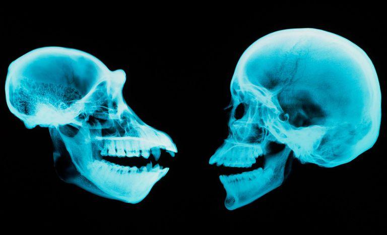 Chimpanzee vs. Human Skulls