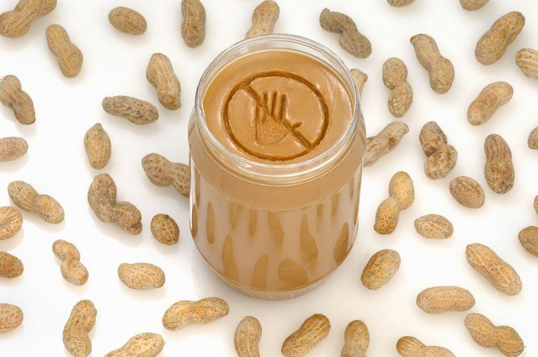 peanut butter allergy