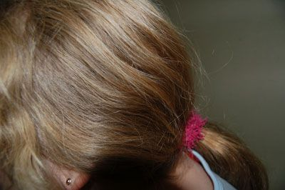 Head Lice Infestation in Girl with Long Hair