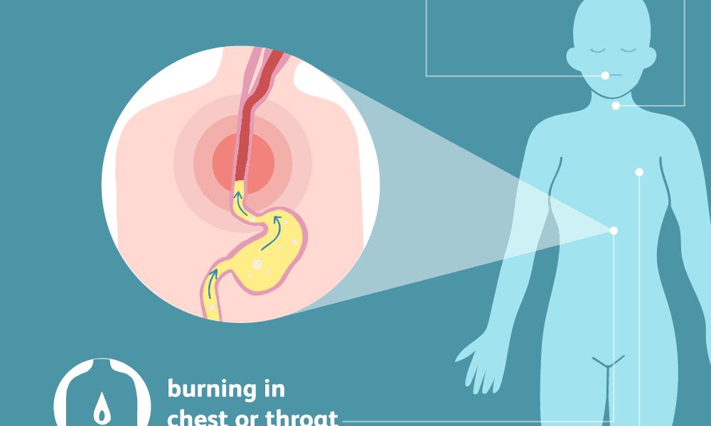 heartburn symptoms