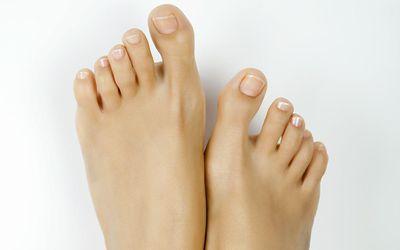 Symptoms of Arthritis of the Big Toe (Hallux Rigidus)