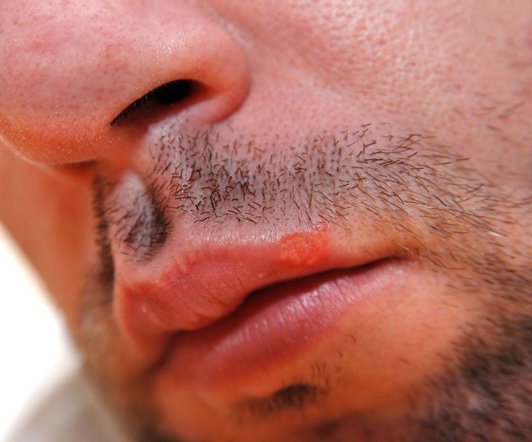 Herpes, cold sore or fever blister