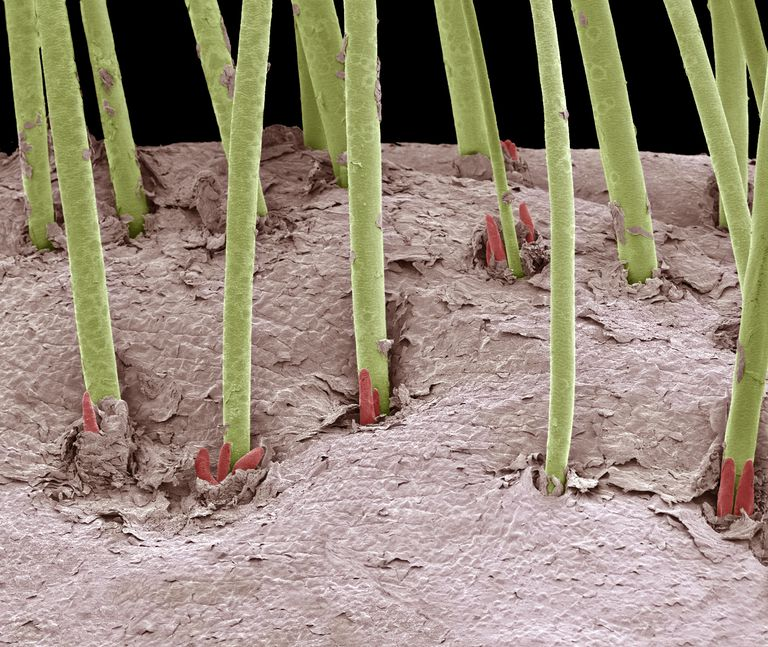 Electron micrograph of eyelash mites