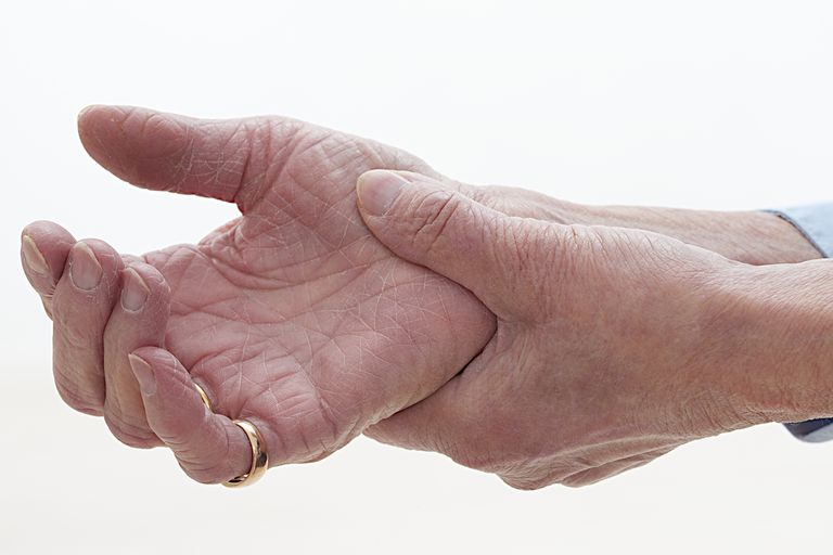 Osteoarthritis affects all joints, including the hands.