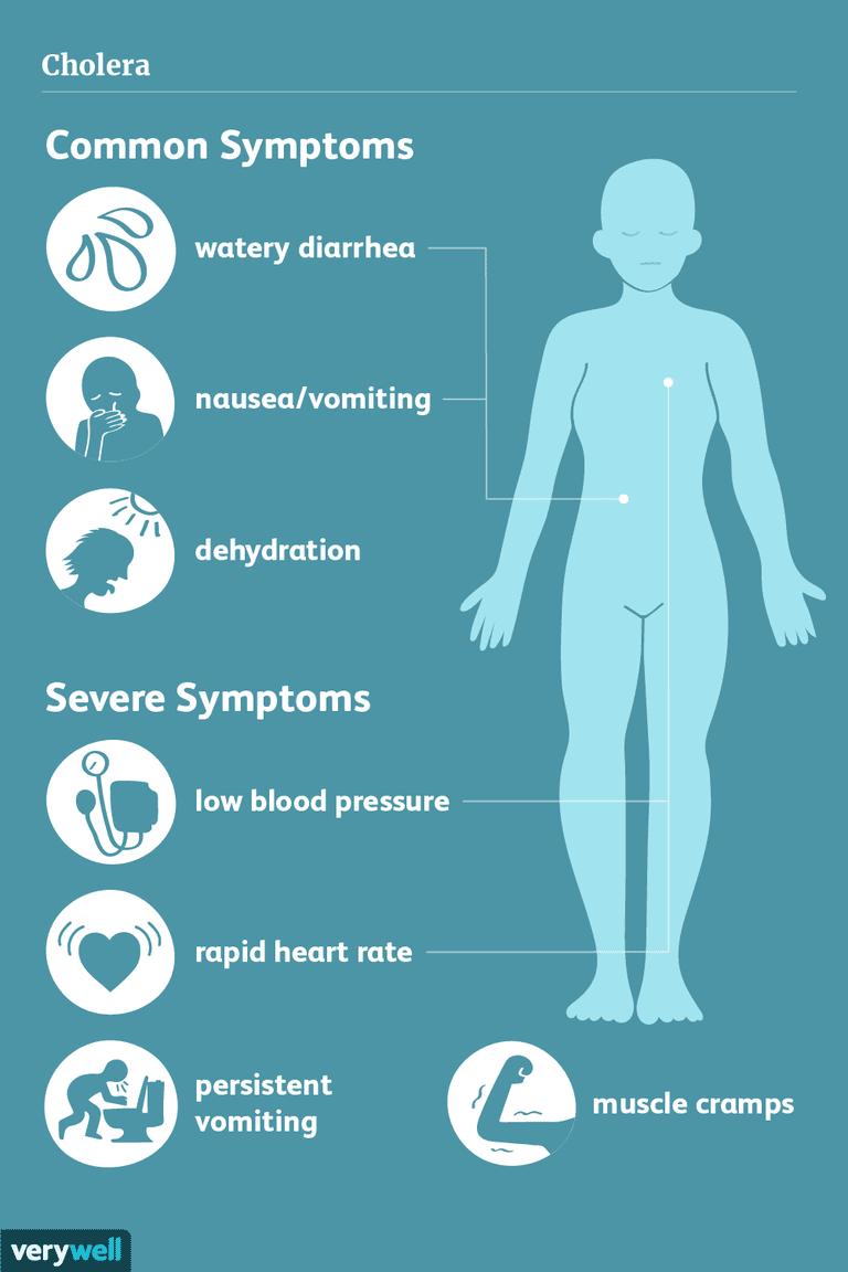 cholera symptoms