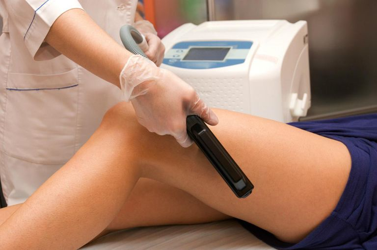 The pros and cons of laser hair removal laser epilation of leg solutioingenieria Gallery