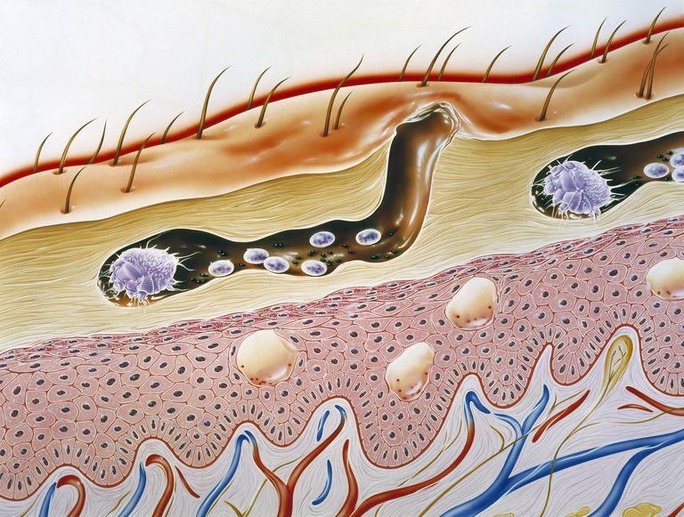illustration of scabies mite burrowing through skin