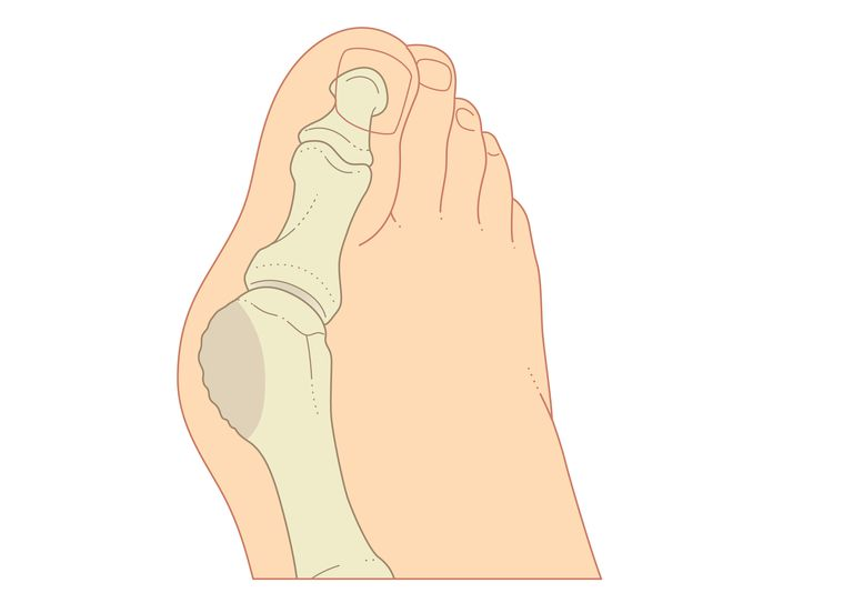 Digital illustration of bunion with enlargement of bone around joint at base of big
