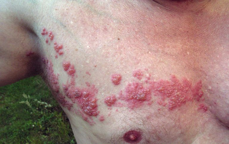 Shingles.jpg used under a Creative Commons license at http://commons.wikimedia.org/wiki/File:Herpes_zoster_chest.png