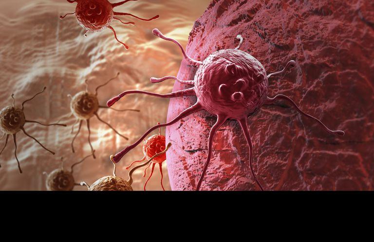 diagram of malignant cells