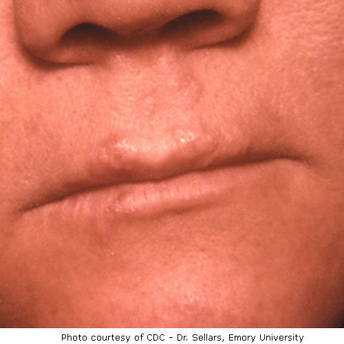 Herpes Pictures And Cold Sores Pictures-3150