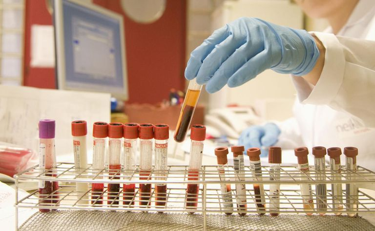 Reception of blood and serum samples