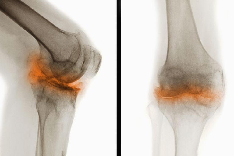 X-rays showing severe osteoarthritis in the knee.