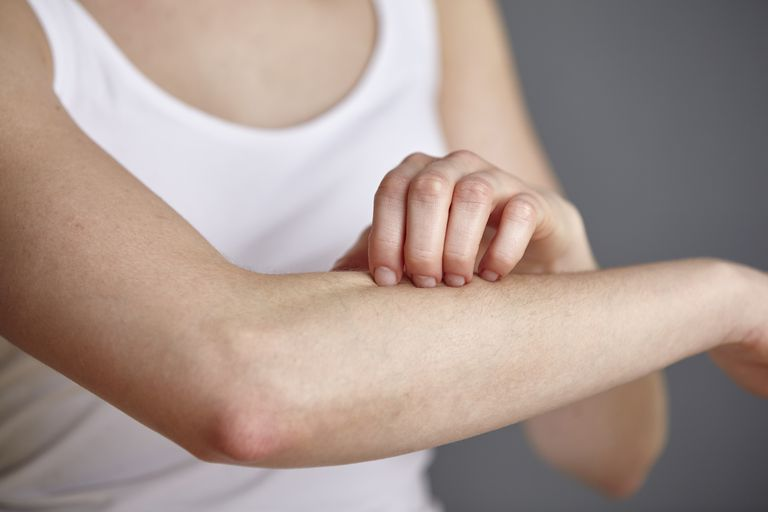 Cropped shot of young woman scratching her forearm with fingers