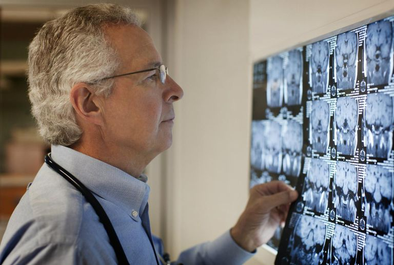 Doctor looking at head x-rays