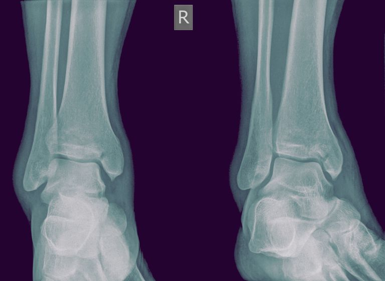 medial malleolus ankle fracture