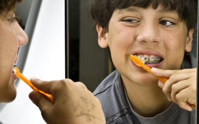 The Best Diet For Those With Braces