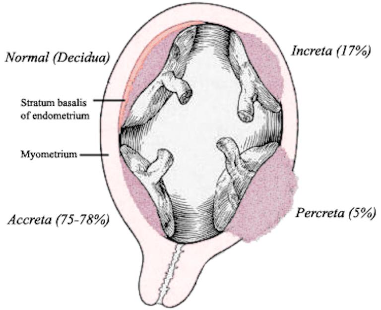 placenta acreta
