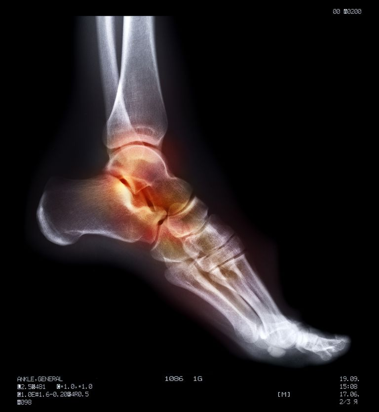 Common Foot Injuries Among Skaters