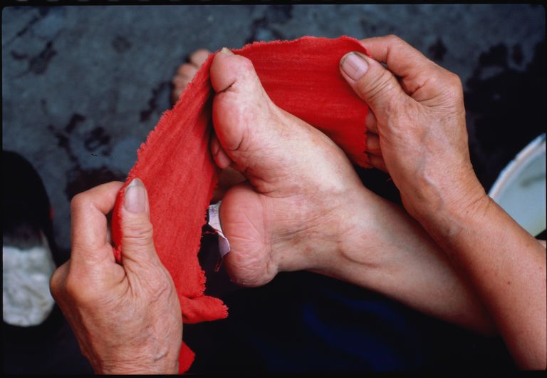 An elderly lady in Sichuan Province re-wraps her bound foot.
