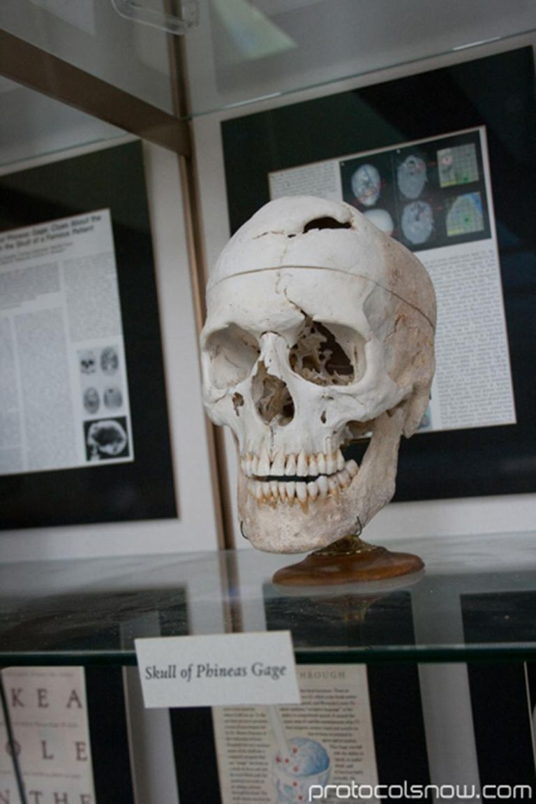 The Skull of Phineas Gage on display at Harvard Medical School