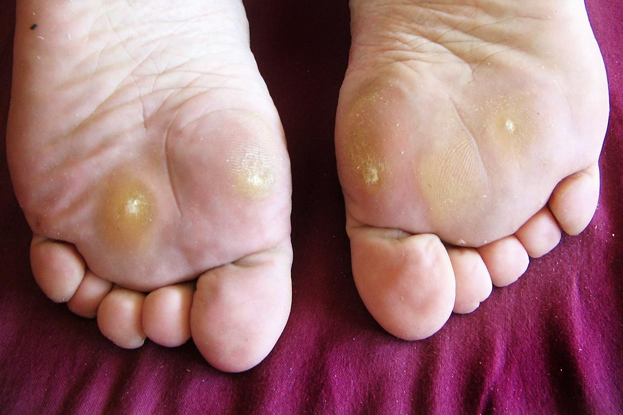 How To Identify And Treat Plantar Warts