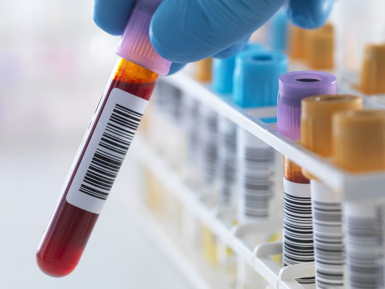 what is included in a blood drug test for employment