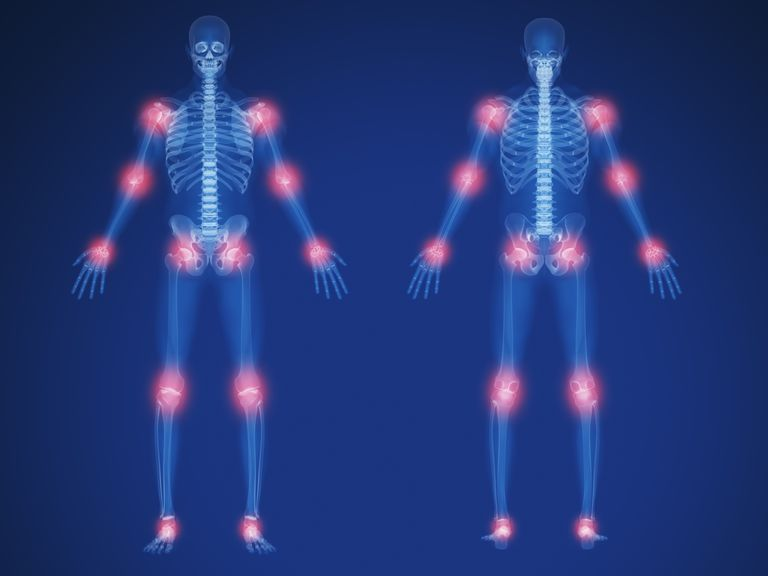 x-ray showing joint pain