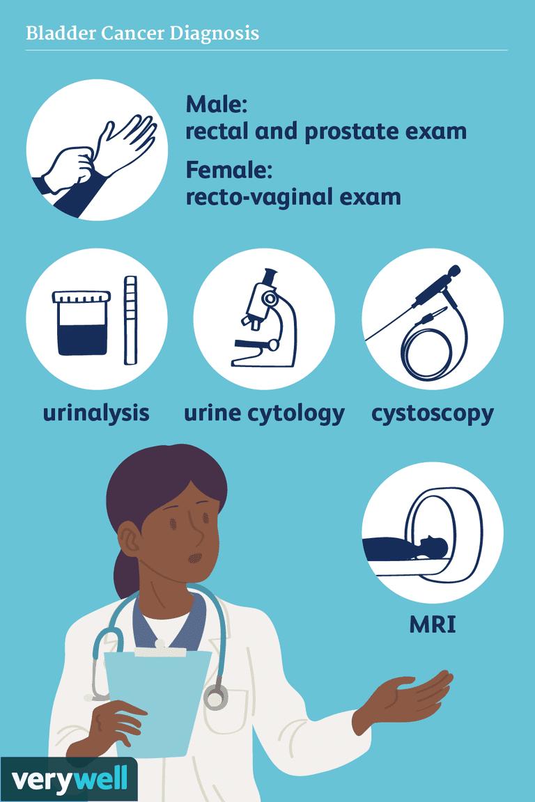 bladder cancer diagnosis