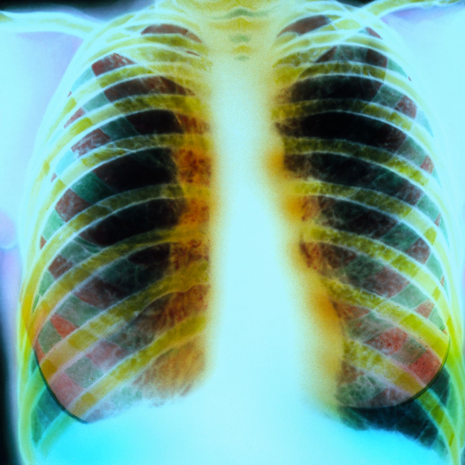 Viral Infections May Affect Cystic Fibrosis Patients: Organisms That Cause Lung Infections In Cystic Fibrosis