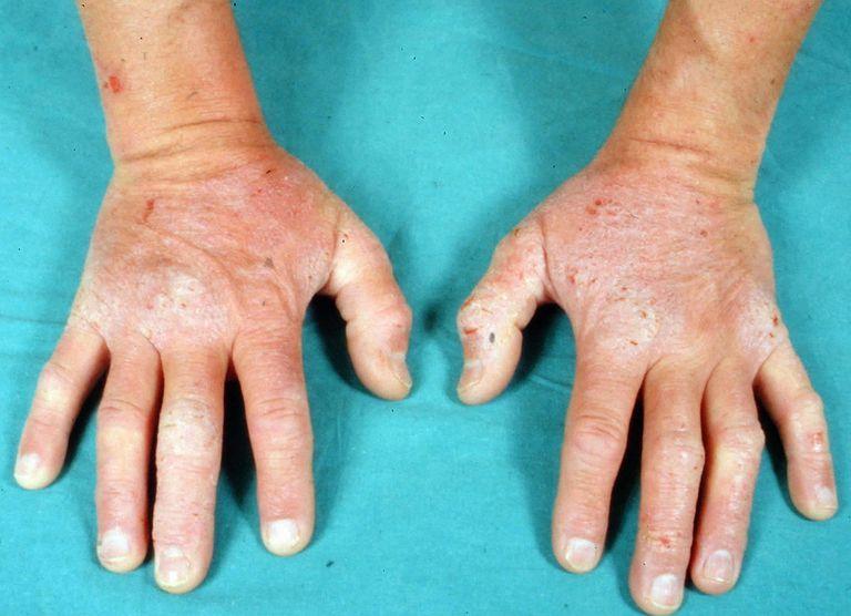 Si es posible librarse de atopicheskogo de la dermatitis para siempre