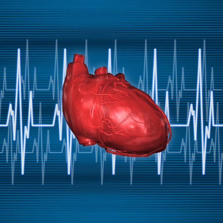 sistema electrico corazon, que es la fibrilacion auricular, fibrilacion auricular sintomas