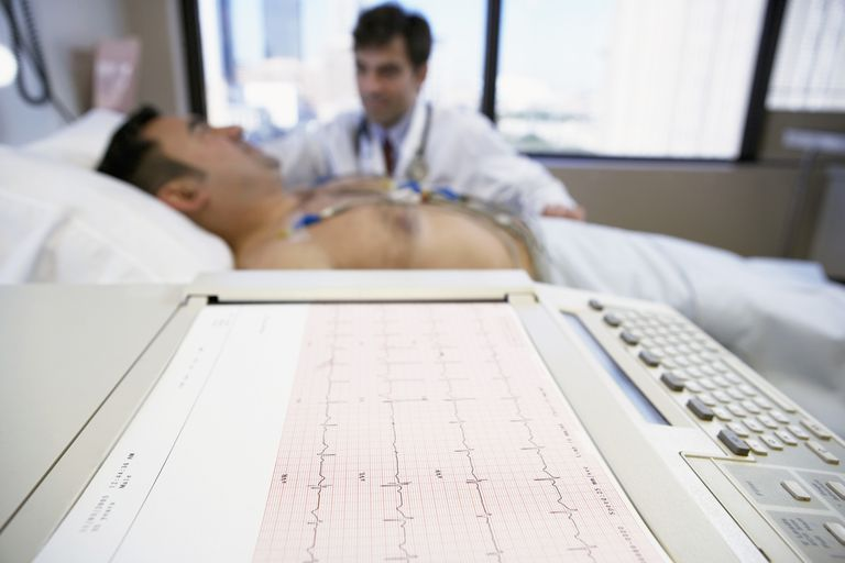 electrocardiograma o ECG, para que sirve un ECG, valores de ECG,