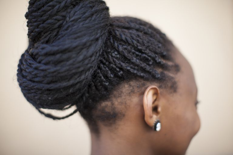 Woman with hair breakage in the nape area