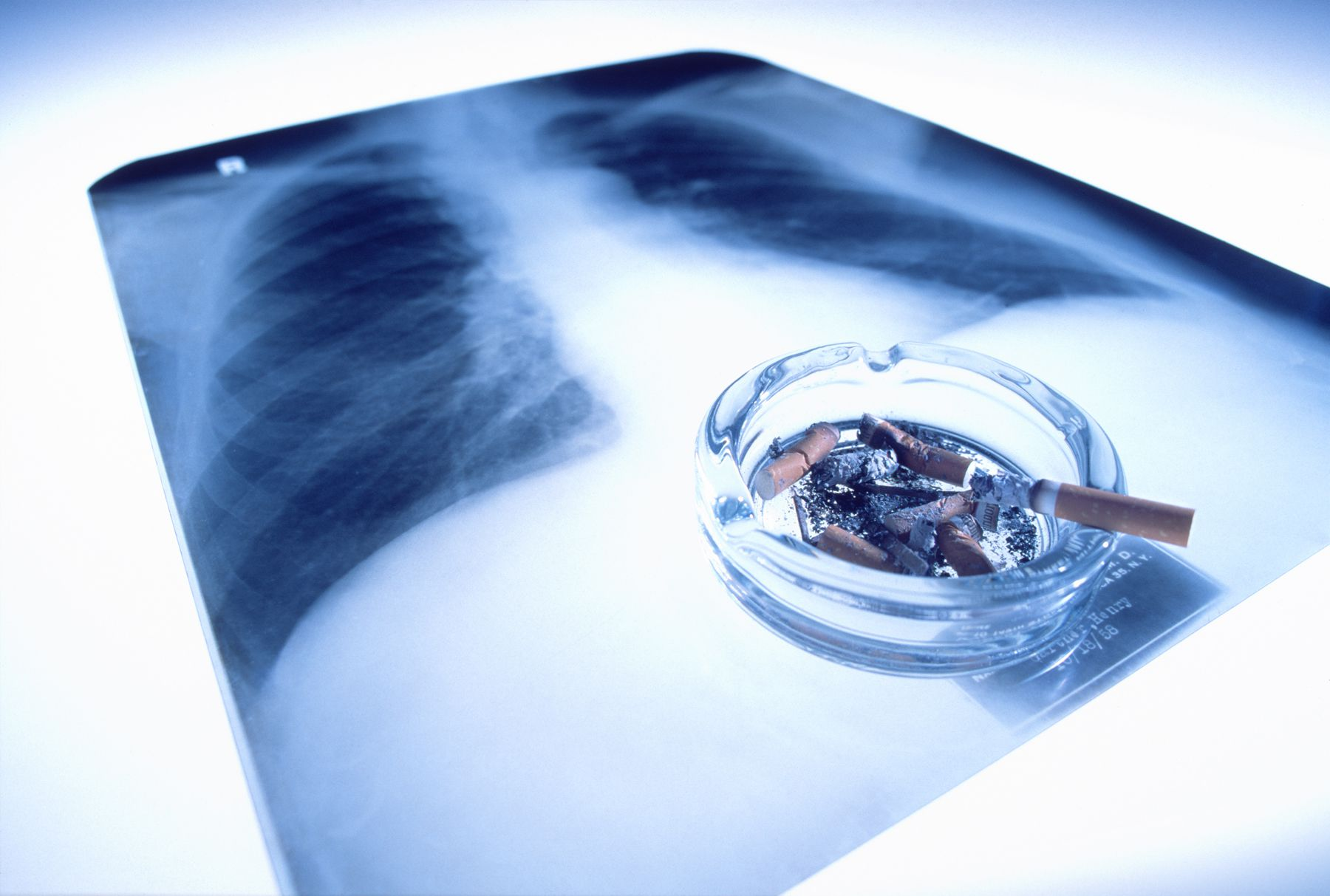 Lung Cancer Risk Reduction