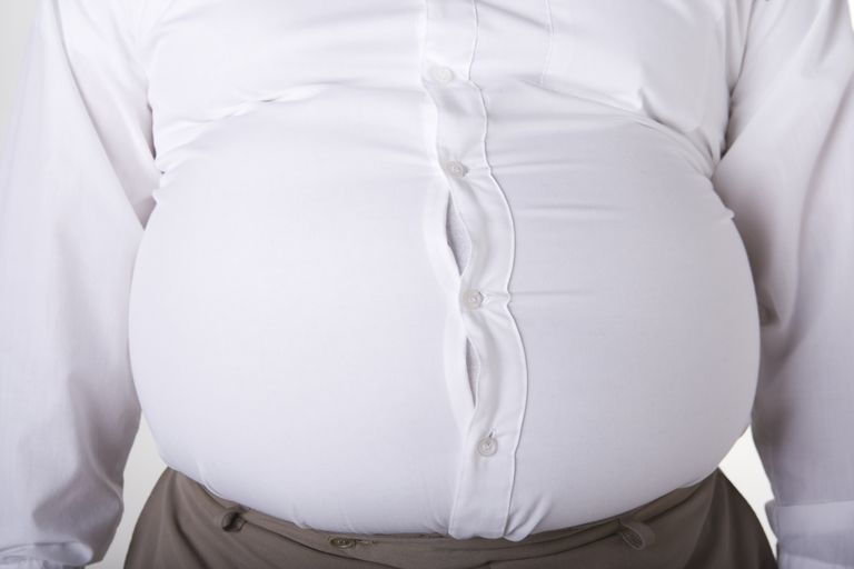 obese man's stomach making shirt buttons pull