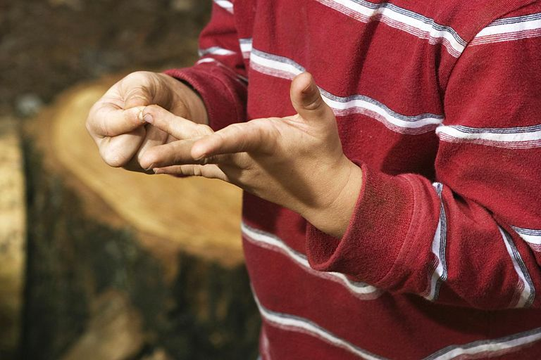 Boy with splinter in his hand