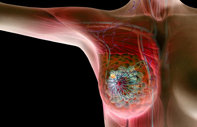 Computer rendering of breast cancer