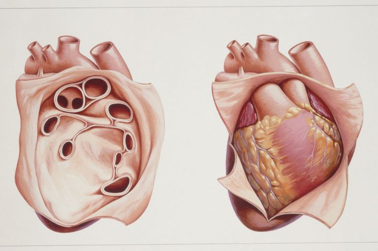 Anatomy Of The Heart Pericardium 373201