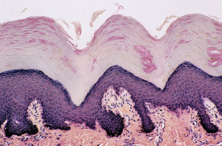 Skin. Desquamation (sloughing of cells) from the Epidermis, Thick Skin, Human, 100X at 35mm. Shows: epidermal layers