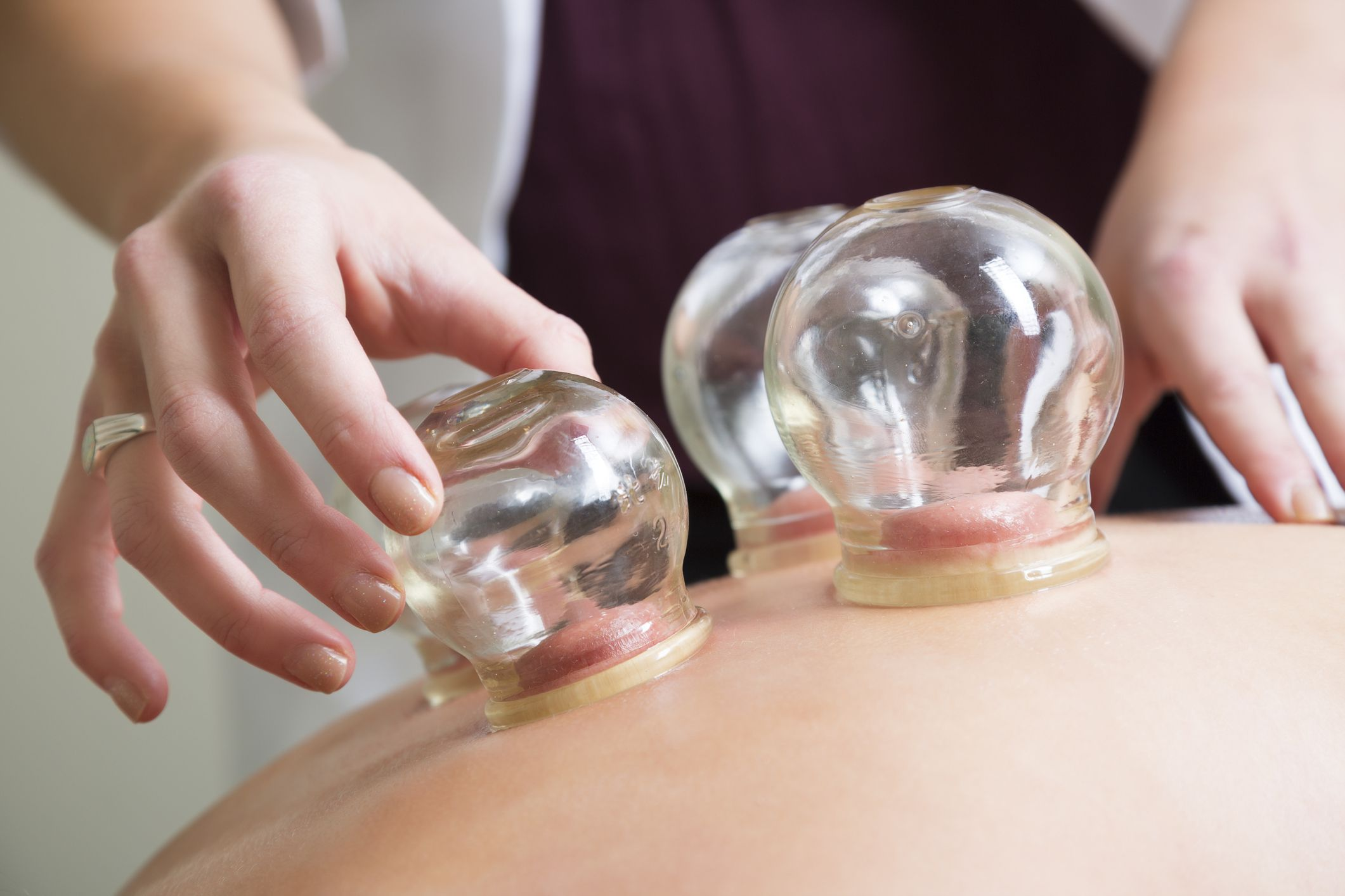 Does Cupping Bring Relief for Fibromyalgia?
