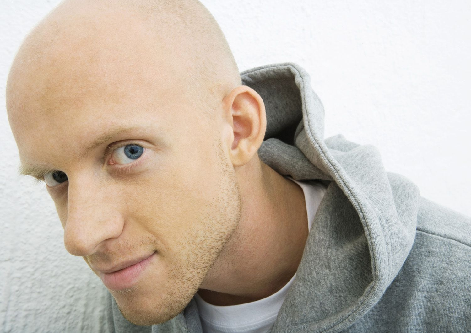 Dealing With Hair Loss In Men