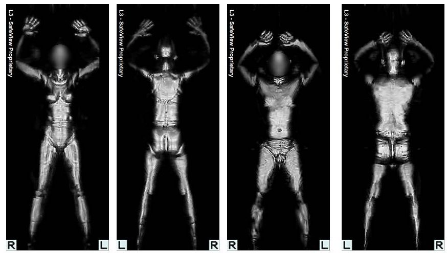 TSA MIllimeter Wave Picture - TSA Backscatter Body Imaging Picture - image from the TSA Showing Body
