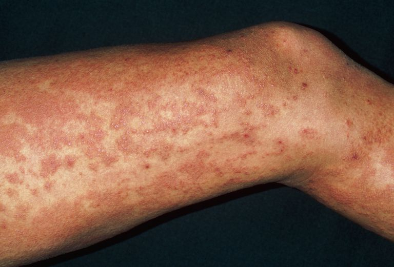 Urticaria rash (hives) on legs due to exam stress