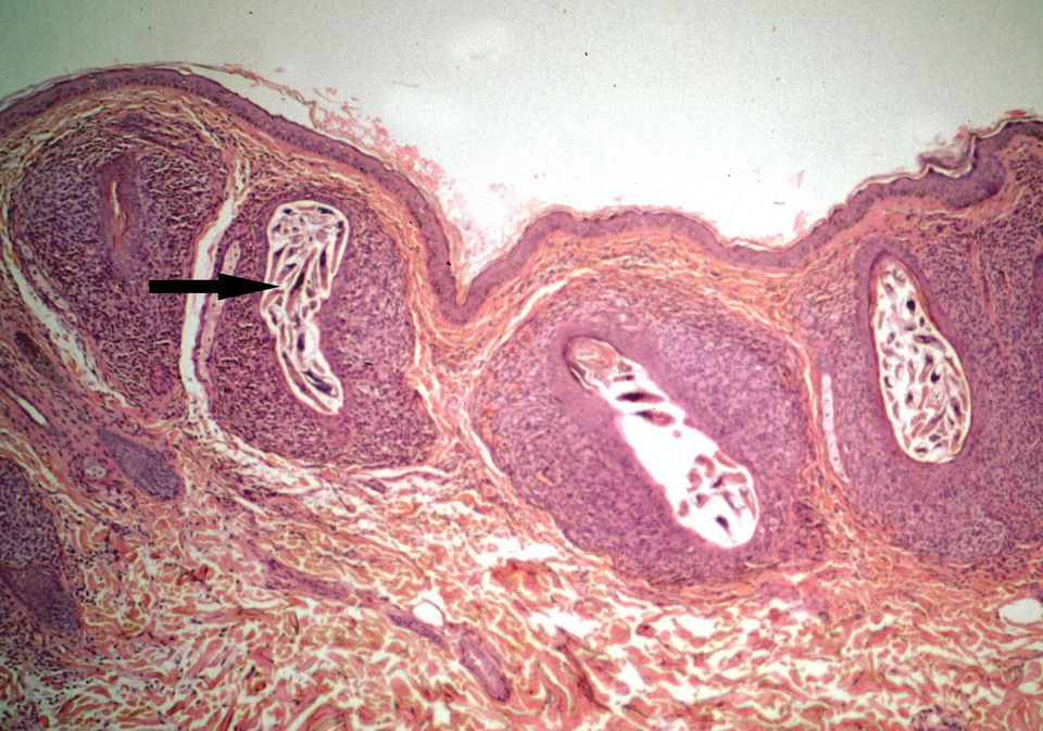 Section of skin of monkey infested with Demodex mites