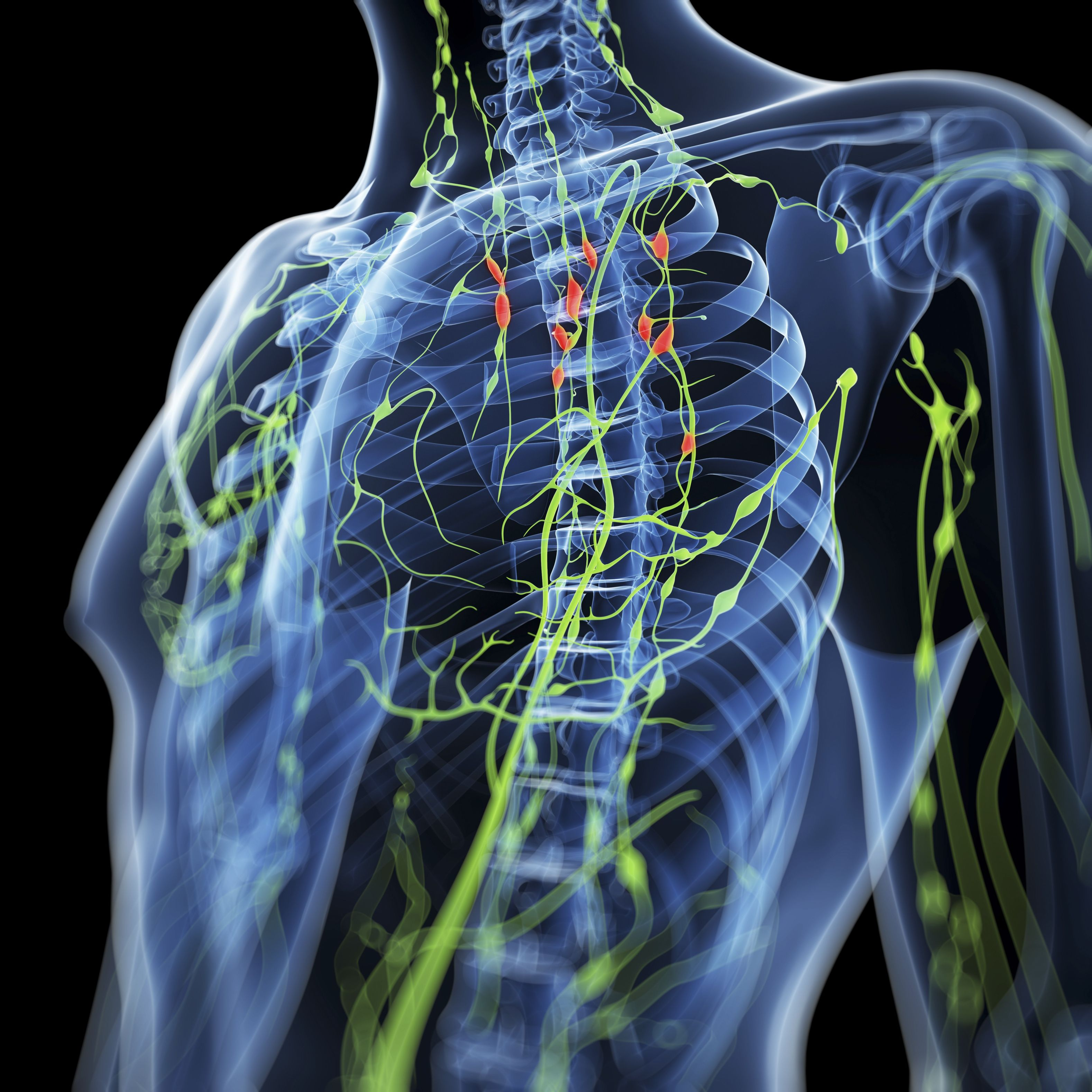 Nodular Sclerosing Hodgkin Lymphoma Overview
