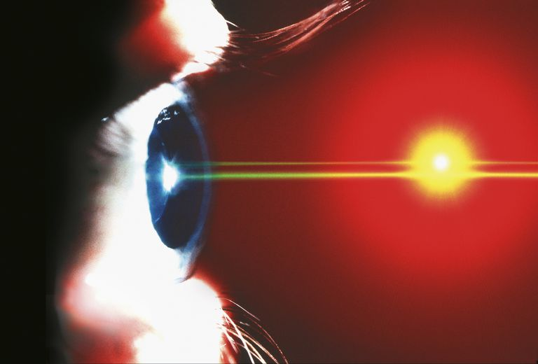 Illustration of eye laser surgery